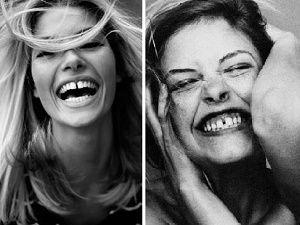 En seksi kusur: Ayrık dişler