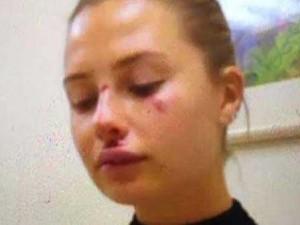 Serdar Ortaç'ın eşi Chloe dayak mı yedi ?