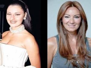 Pınar Altuğ şaşırttı! Ona bir de estetiksiz bakın