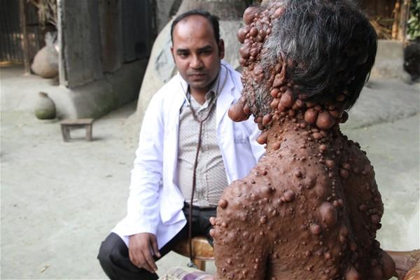 Bedeninde yüzlerce tümör olan adamın dramı 1