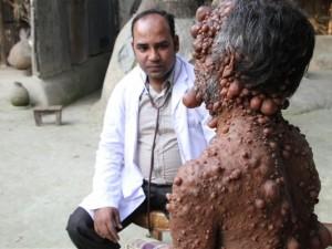 Bedeninde yüzlerce tümör olan adamın dramı