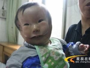 Çin'de çift suratlı bebek dünyaya geldi