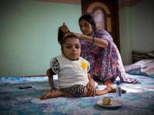 Kemikleri 1000 kezden fazla kırılan Hintli kızın dramı