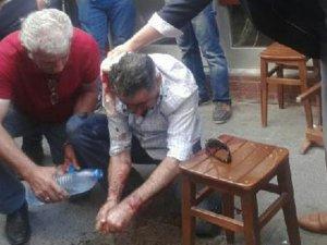 MHP'li Başkan'ın eşini dövdüler