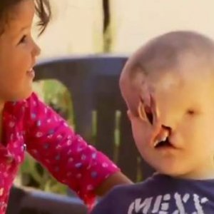Gözleri ve burnu yoktu; hayatını Facebook değiştirdi !