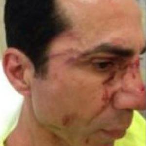 CHP'li meclis üyesine tekme tokat dayak