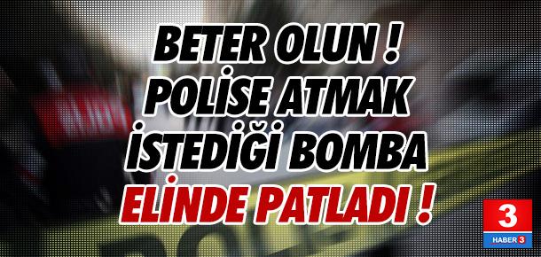 Polise atacağı bomba elinde patladı