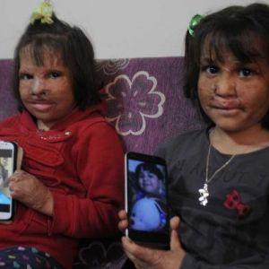 Suriyeli Minik Kız Kardeşlerin Güzelliği Fotoğraflarda Kaldı