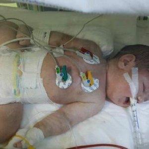 Doktor gelmeyince bebeği eliyle rahime itti