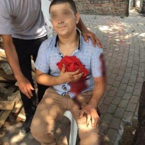 Madde bağımlısı genç dehşet saçtı: 1 ölü, 2 yaralı