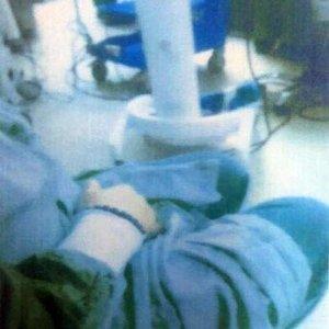 Ameliyat öncesi mastürbasyon skandalı !