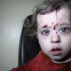 İdlib'te vakum bombalı saldırı: 20 ölü, 24 yaralı