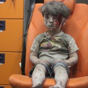 Dünyanın konuştuğu Ümran bebek ağır yaralandı