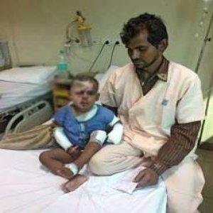 İki yaşındaki çocuğun yüzünü asitle yaktı