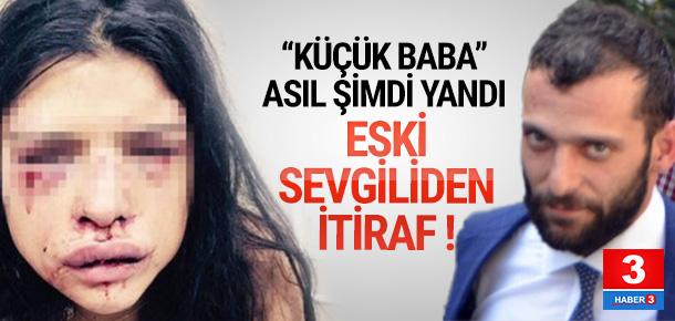 Onur Özbizerdik'in sevgilisi ifadesini değiştirdi !