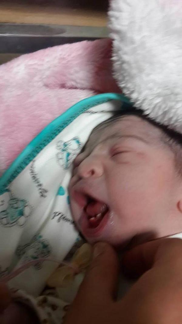 2 dişli doğan bebek şaşırttı