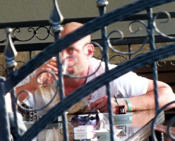 Otelde Sarhoş Turist Barı Dağıttı