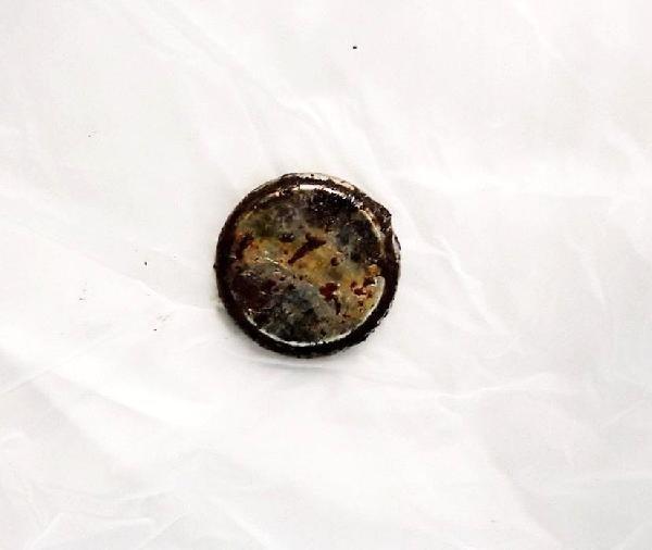 Yuttuğu pil yemek borusunu yaktı !