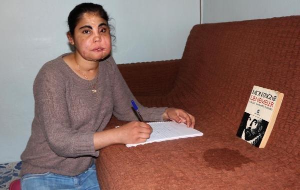 Türkiye'de yüz nakli olan ilk kadın hayatını kaybetti