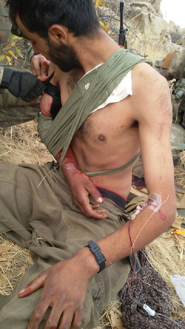 Yaralı teröriste ilk müdahale asker ve koruculardan