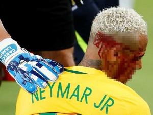 Neymar'a dirsek geldi, kanlar içinde kaldı
