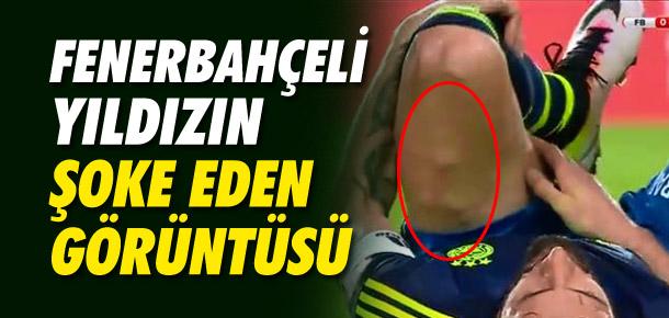 Mehmet Topal'ın şoke eden görüntüsü