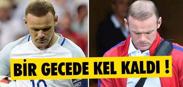 Wayne Rooney bir gecede kel kaldı !