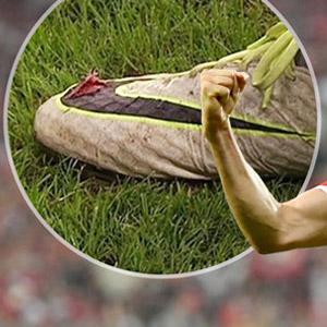 Lewandowski'nin kramponları paramparça
