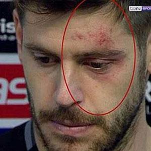 Fabri: ''Bence penaltı değil''